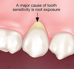 جلوگیری و درمان حساسیت دندان