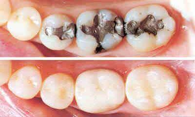 جلوگیری و درمان آبسه دندان
