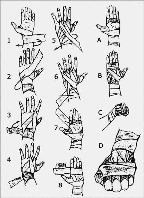 باند پیچی روی دست