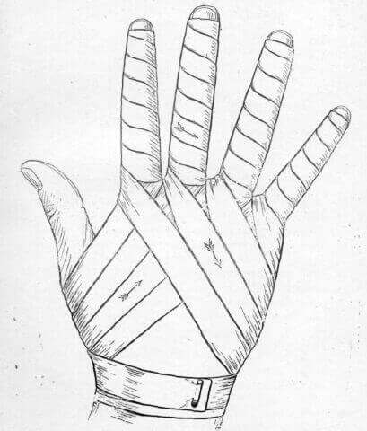باند پیچی روی دست و پا